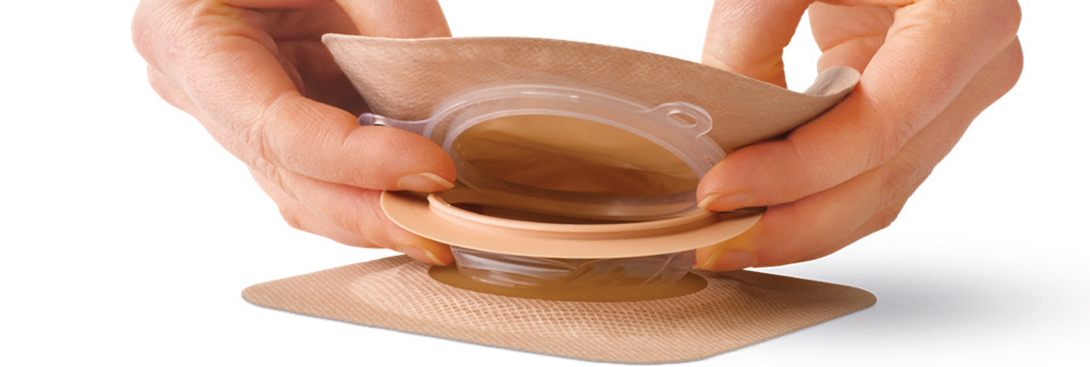 Natura<sup>®</sup>Plus: die zweiteilige Stomaversorgung für maximale Sicherheit