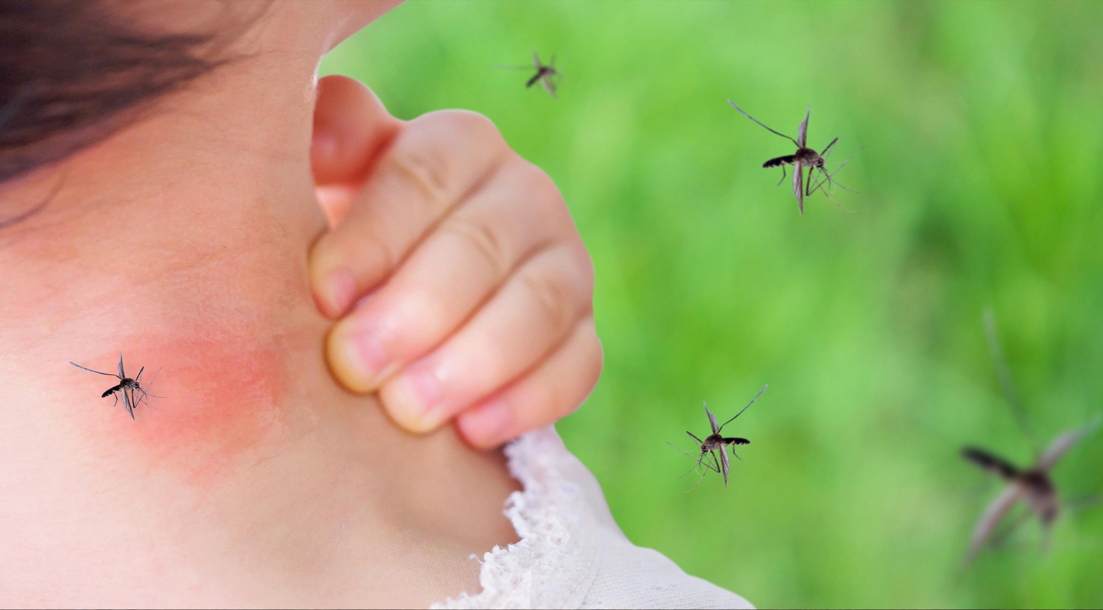 Insektenstiche: Schützen Sie sich im Vorfeld, um eine Behandlung zu verhindern